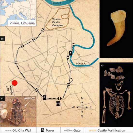 Сифилис в Европе появился до Колумба-1