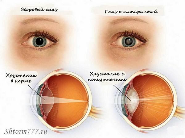 Больной катарактой
